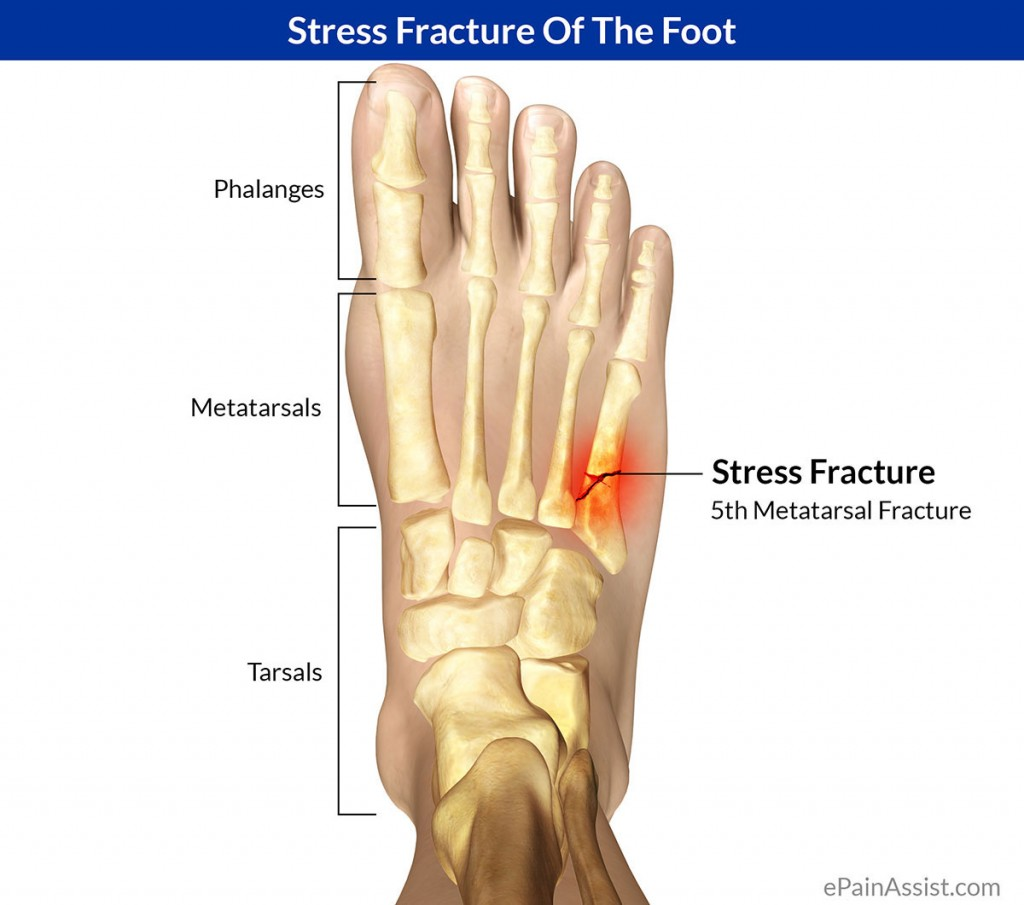 How Do You Know If You Have A Bone Stress Facture