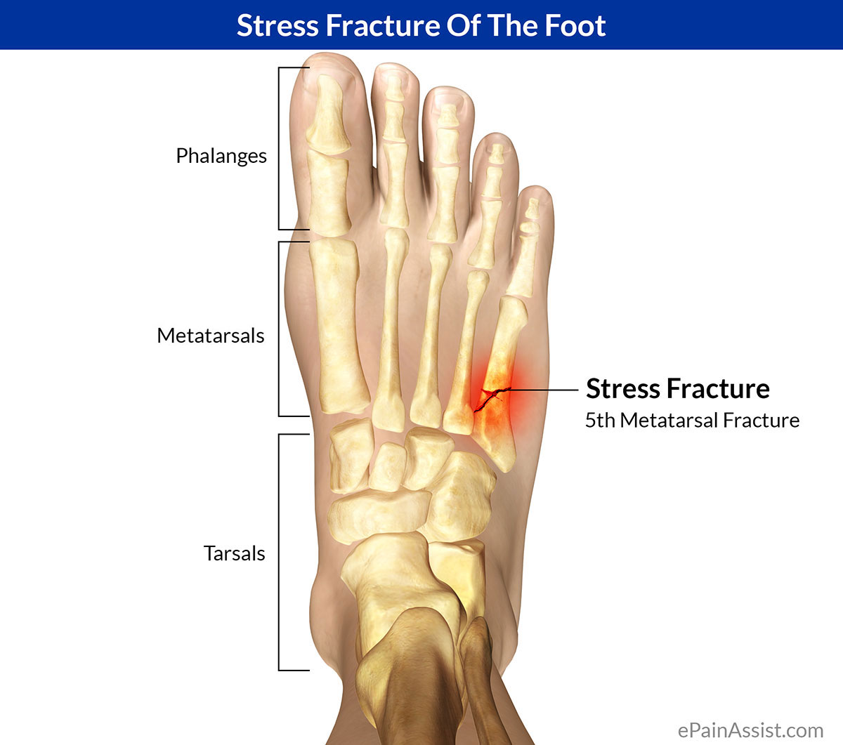 How do i know if i have a bone stress injury (bsi), ie a stress reaction or stress fracture?