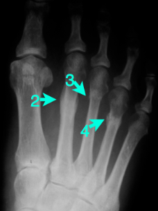Metatarsal Stress Fractures | Sports Physio Gold Coast ...